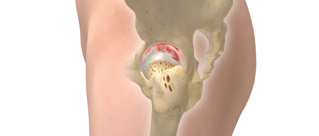 Hip Lateral Skeletal Arthritis Flat Copy